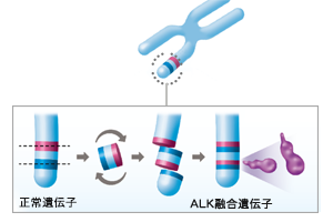ALK融合遺伝子とは?