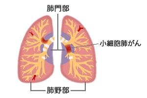 小細胞肺がん
