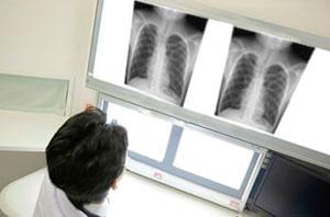 腹部X線検査(レントゲン検査)