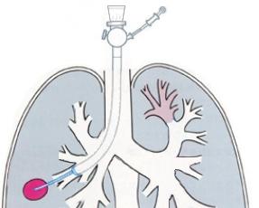 気管支鏡検査