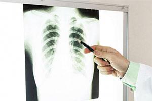 非小細胞肺がんの転移・再発