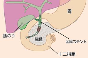 ステント留置手術